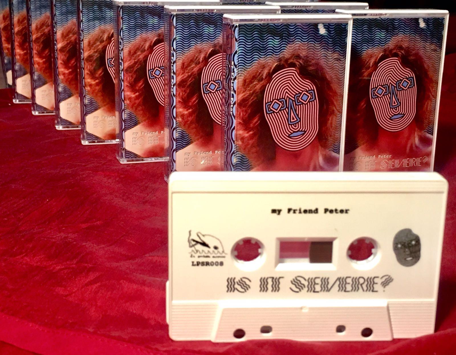 My Friend Peter - Is It Severe?