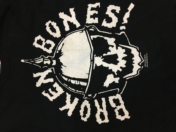 Broken Bones Shirt