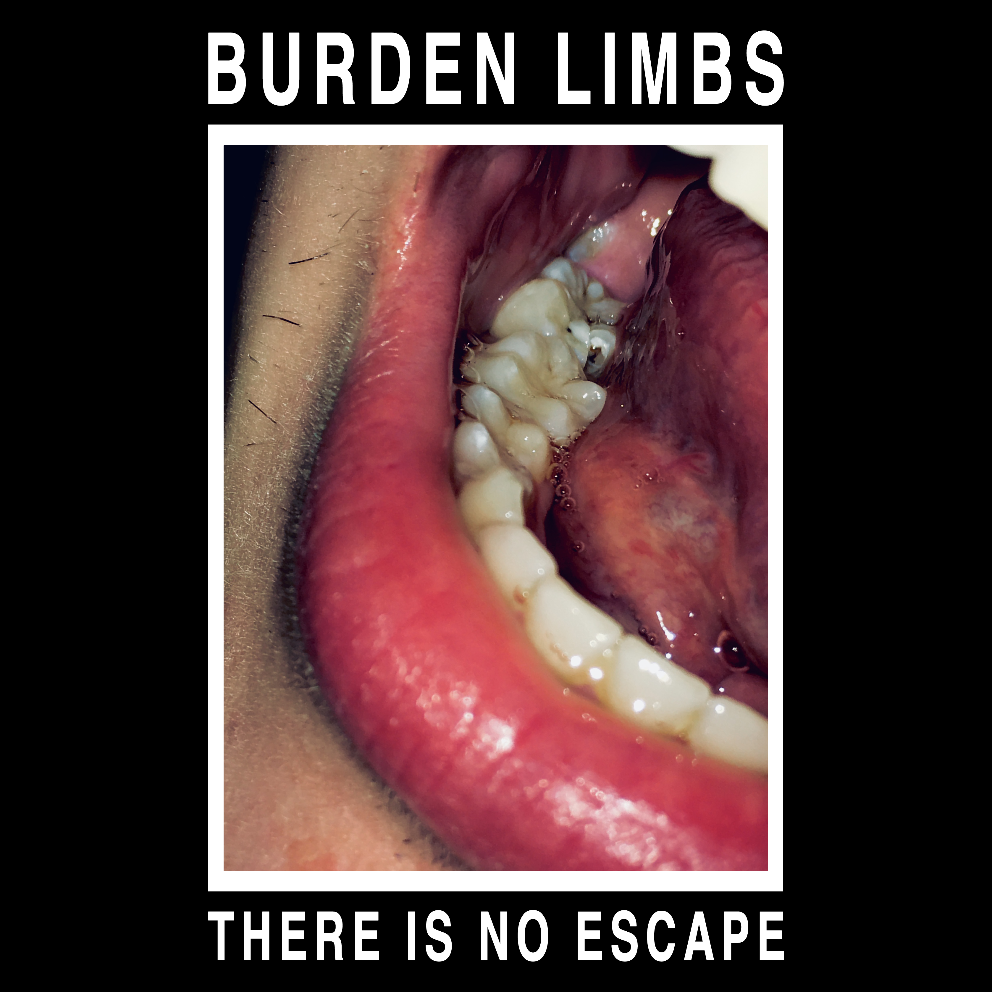 Burden Limbs - 'There Is No Escape' T-Shirt